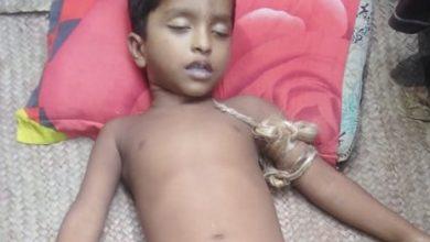 Photo of ভাঙ্গায় সাপের কামড়ে শিশুর মৃত্যু